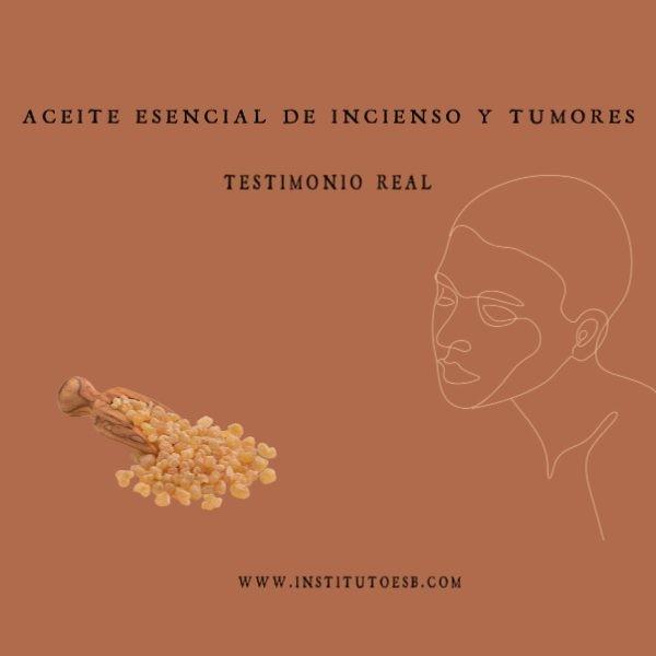 aceite esencial de incienso y tumores